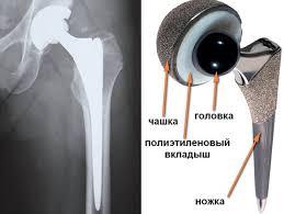 Протезы тазобедренного сустава цены минск состояние тазобедренных суставов ребенка